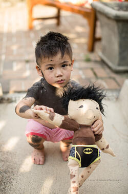 young boy with moles holds a doll that looks like him